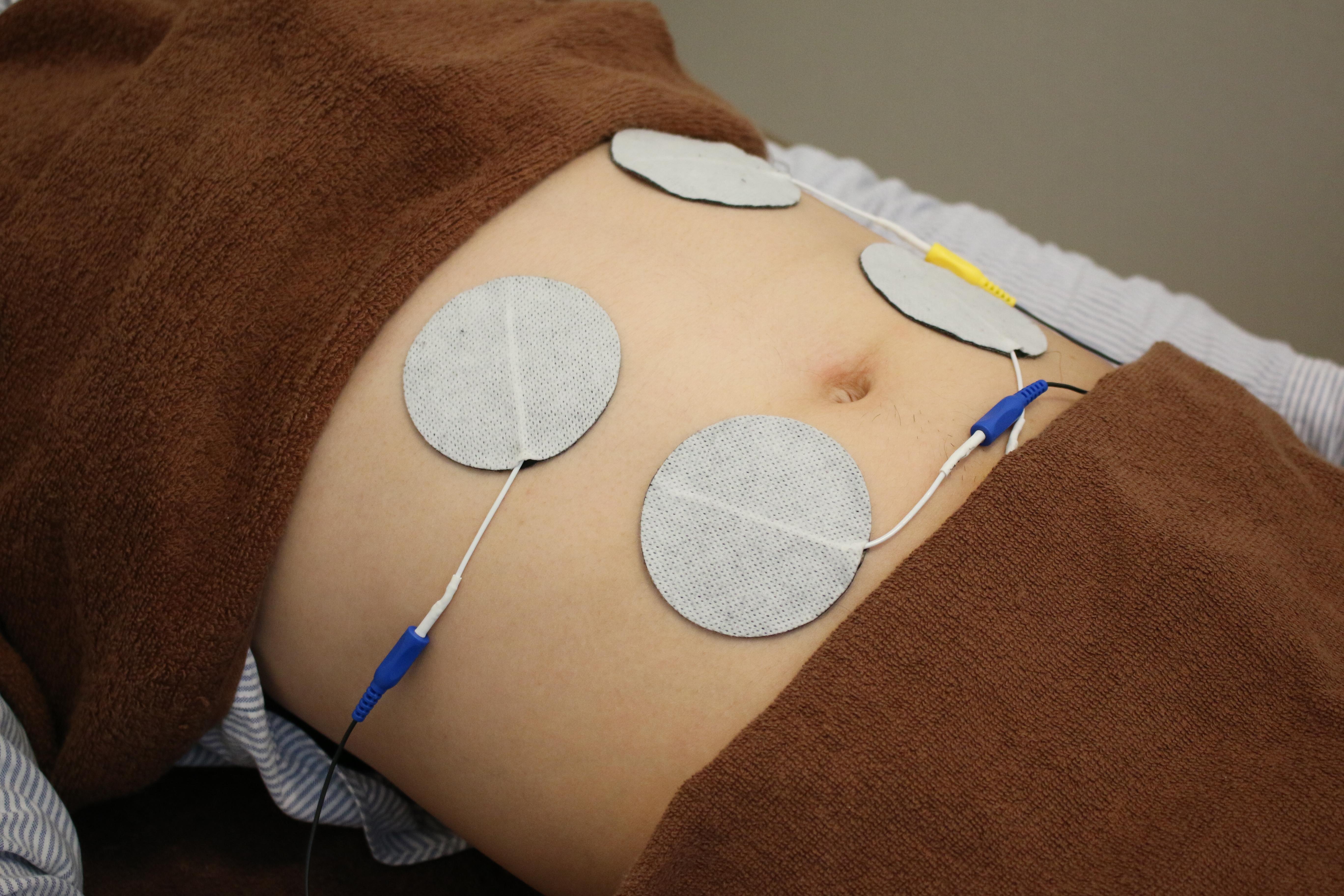 電気治療を行います。
