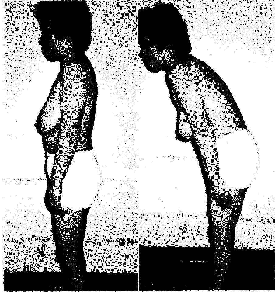 脊柱管狭窄症の方が鳴りやすい姿勢