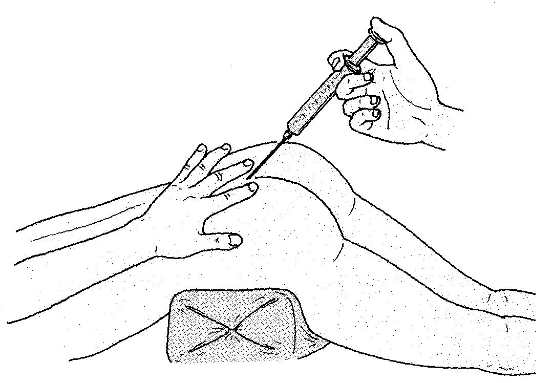 硬膜外注射