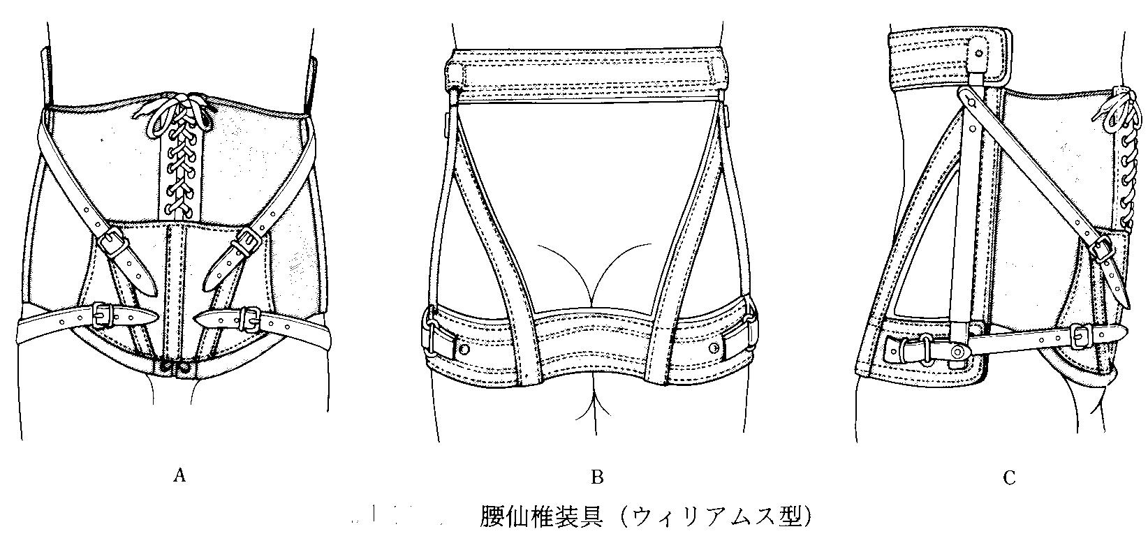 装具のイメージ