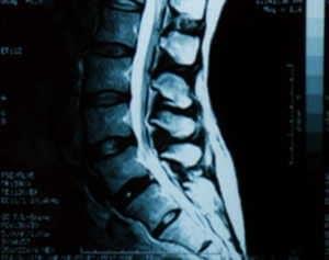 MRIのイメージ